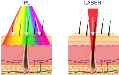 Epiladoras a laser Vs Epiladoras IPL