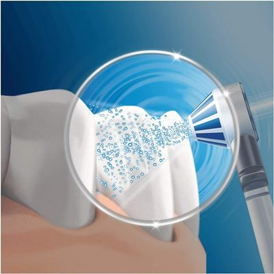 irrigador dental tecnología