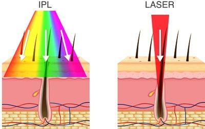 Depiladoras Láser Vs Depiladoras IPL